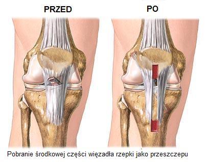 Где можно сделать артроскопическую операцию коленного сустава в г пятигорске разрушает ли фемостон тазобедренный сустав