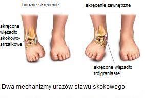 Skręcona kostka: objawy i leczenie skręcenia stawu skokowego